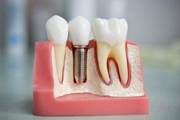 Имплантация зубов в Дербенте