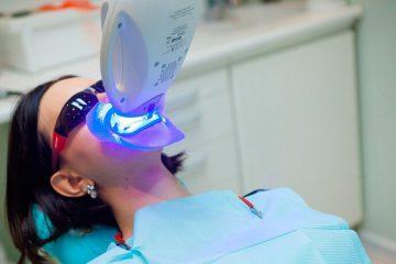 Отбеливание зубов в Дербенте