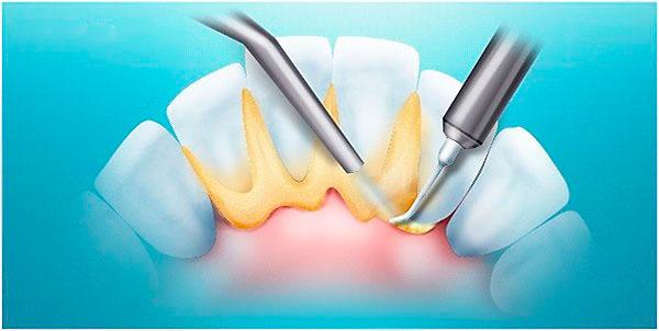 Удаление зубного камня в Дербенте